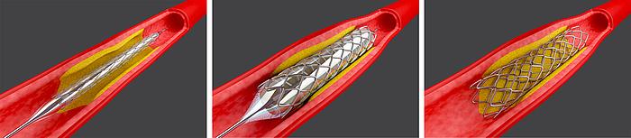 Grafik eines Blutgefäßes, in das ein Stent eingeführt wird.
