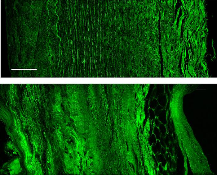 Zwei Bilder. Das obere zeigt schwarzen Hintergrund und leuchtend grüne Fasern, die links klein und dünn sind. in der Mitte lang und kräftig und rechts lang und wellig. Im unteren Bild ist die Faserstruktur aufgelöst.