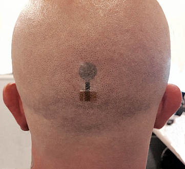 Bald back of the head with tattoo electrodes for EEG measurement