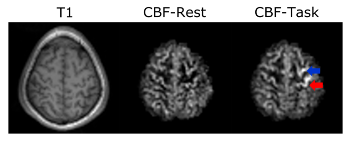 Three pictures of a brain. The first one is labelled T1 and shows the brain with a small glow around it. The second one is labelled CBF-Rest and just shows the brain. The third one is labelled CBF-Task and a red arrow points at a light region in the brain while a blue arrow points at a dark region.