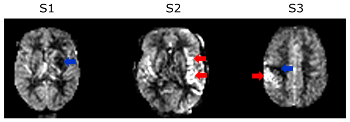 There are three pictures of a brain. Above the first one it says S1, above the second S2 and above the third S3. There is a blue arrow pointing at a dark part the middle of the brain in S1. There are two red arrows pointing at a very light part on the left side of the brain in S2. There is a blue arrow pointing at a dark part on the left side of S3 and a red arrow pointing at a light part also on the left side of S3.