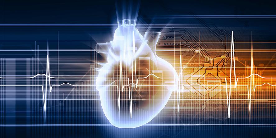 Grafik eines Herzens, im Hintergrund ist eine Herzstromkurve eines EKGs zu sehen.