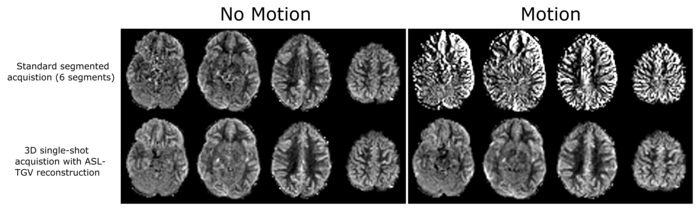 There are two pictures with two rows of four pictures of a brain each. The first one is titelt No Motion and the second one Motion. The second one is sharper, than the first one. Next to the first row it says Standard segmented acquisition (6 segments). Next to the second row it says 3D single-shot acquisition with ASL-TGV reconstruction.