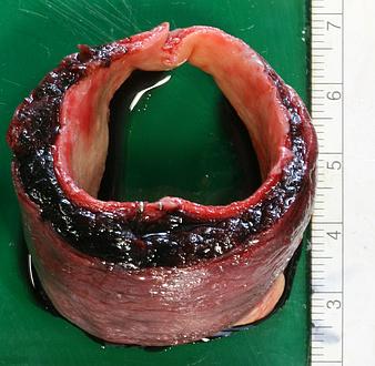 Bloodshot aorta piece on green base